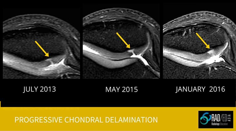 Chondral Delamination Mri Radiology Education Asia Radedasia