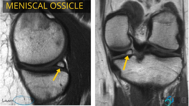 meniscal ossicle mri radiology education asia