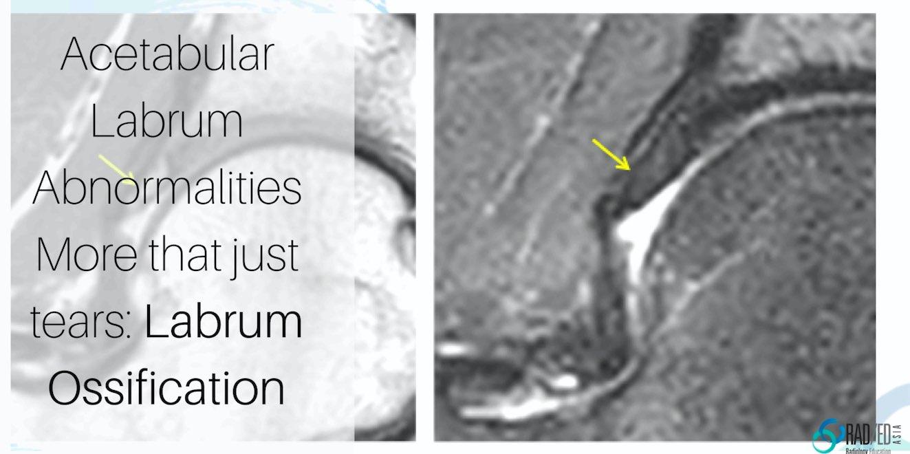 hip labrum ossification mri