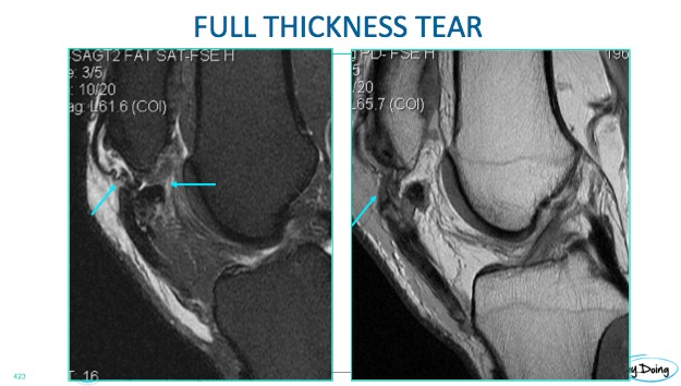 mri patella full thickness completer rupture tear radiology education asia