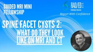 ct mri facet cysts mri spine how to mri facet cysts spine learn spine mri online radiology education asia