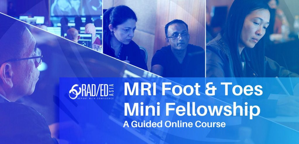 FOOT AND TOES MRI ONLINE MSK COURSE GUIDED LEARNING JULY 2021