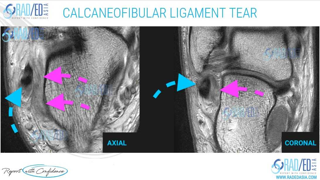 ankle mri ligaments cfl calcaneofibular report radedasia