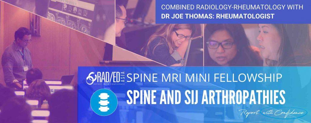 learn spine mri radiology spondyloarthropathy ankylosing spondylitis radedasia